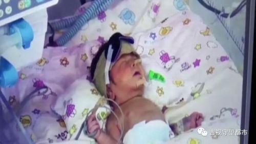 吉林市中心医院:新生儿额头有红斑,一年后变凸起,孩子究竟怎么