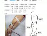 【科普】钝针穿刺为透析患者带来福音
