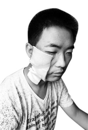 修路未放置标志 长春高三男生骑车摔伤